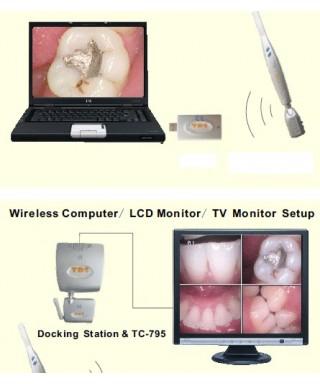 Сет интраорална камера  (1.3 Mp) TDS / док станция VGA, USB, AV /