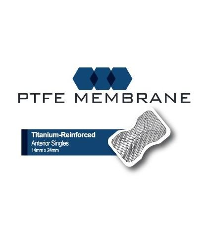 PTFE мембрана с титан, нерезорбируема, антериорна (р-р 14х24мм)