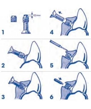 Micro spring screw - kit