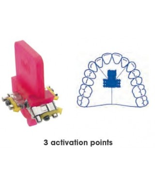 Three directional, three activation points anatomical screw