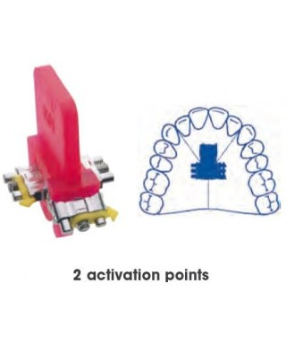 Three directional, two activation points anatomical screw
