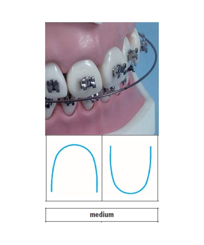 NiTi round orthodontic archwire \
