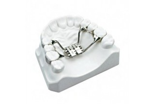 Construction of orthodontic device with rapid palatal expander
